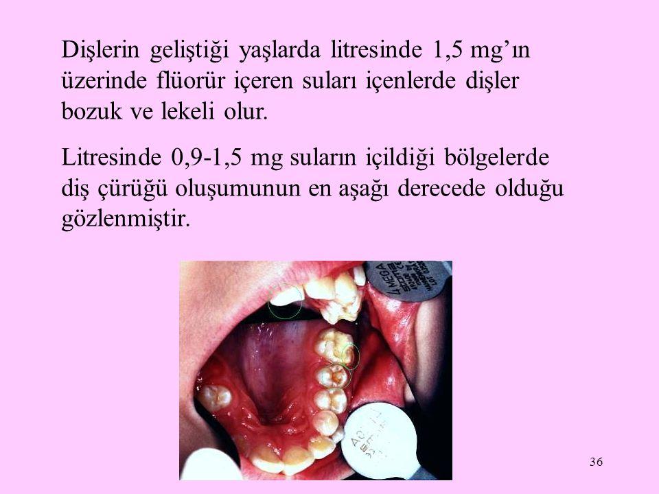 Dişlerin geliştiği yaşlarda litresinde 1,5 mg'ın üzerinde flüorür içeren suları içenlerde dişler bozuk ve lekeli olur.