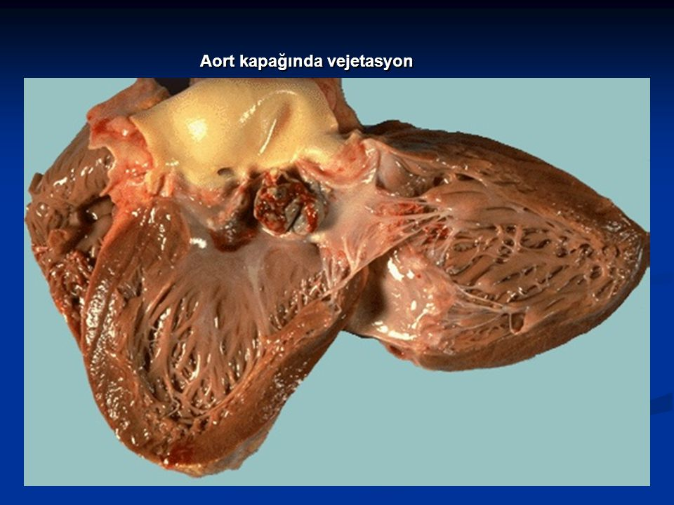 Aort kapağında vejetasyon
