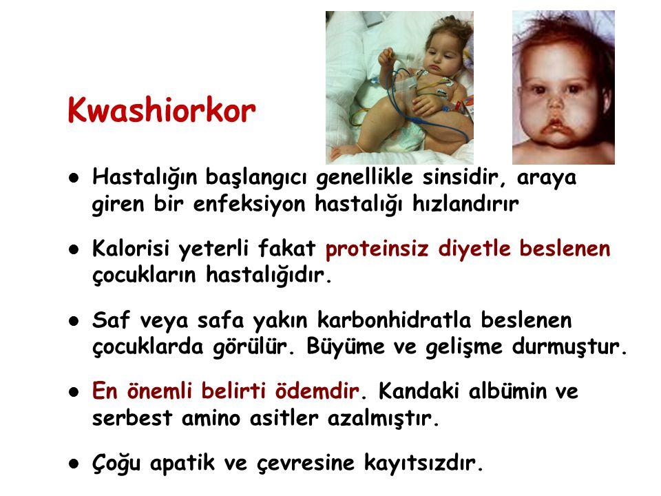 Kwashiorkor Hastalığın başlangıcı genellikle sinsidir, araya giren bir enfeksiyon hastalığı hızlandırır.