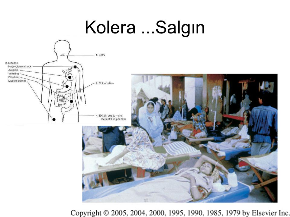 Kolera ...Salgın
