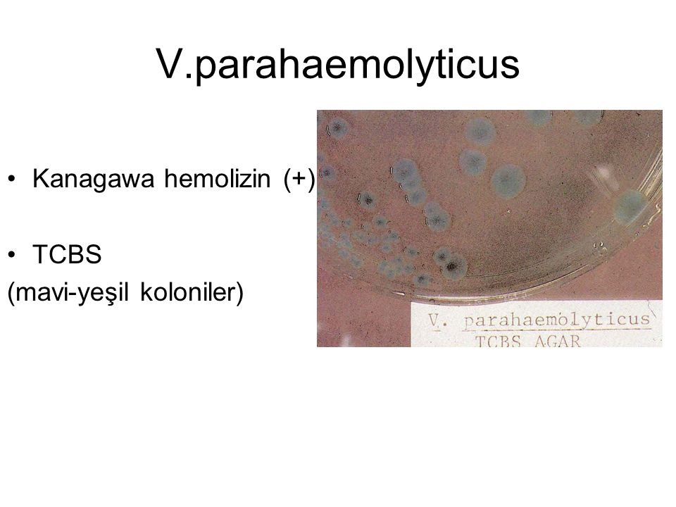 V.parahaemolyticus Kanagawa hemolizin (+) TCBS (mavi-yeşil koloniler)