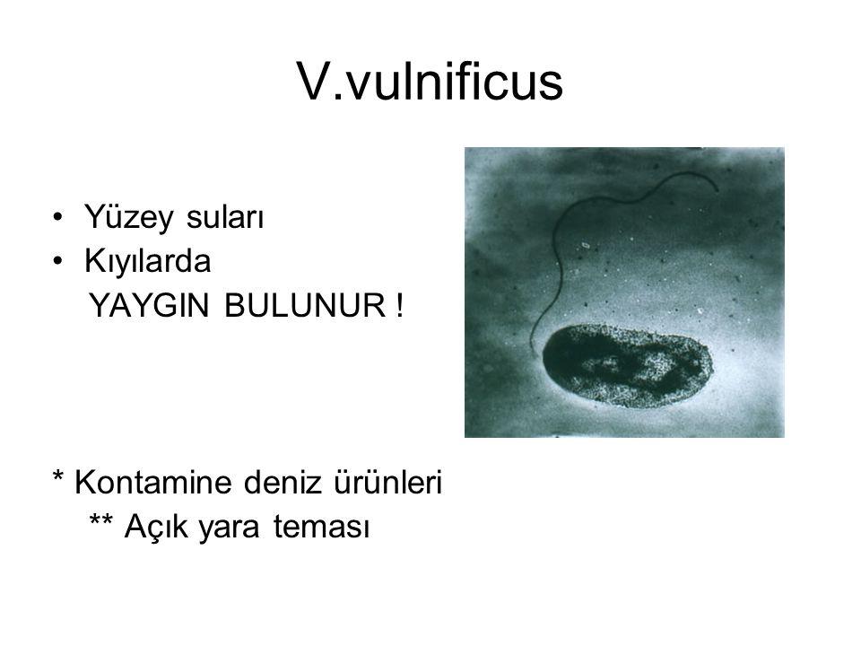 V.vulnificus Yüzey suları Kıyılarda YAYGIN BULUNUR !