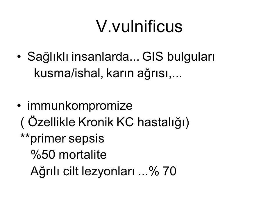 V.vulnificus Sağlıklı insanlarda... GIS bulguları