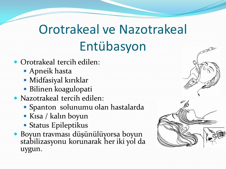 Orotrakeal ve Nazotrakeal Entübasyon