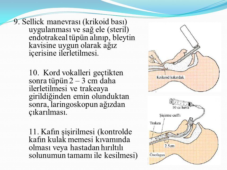 9. Sellick manevrası (krikoid bası) uygulanması ve sağ ele (steril) endotrakeal tüpün alınıp, bleytin kavisine uygun olarak ağız içerisine ilerletilmesi.