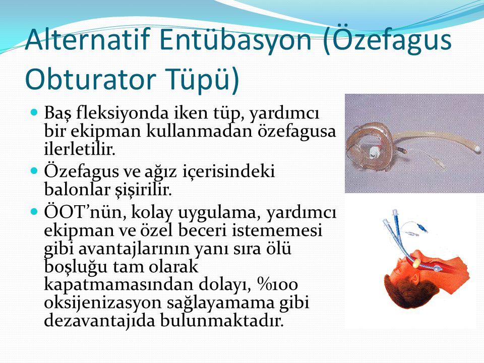 Alternatif Entübasyon (Özefagus Obturator Tüpü)