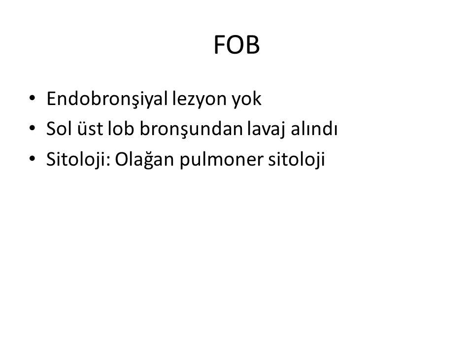 FOB Endobronşiyal lezyon yok Sol üst lob bronşundan lavaj alındı