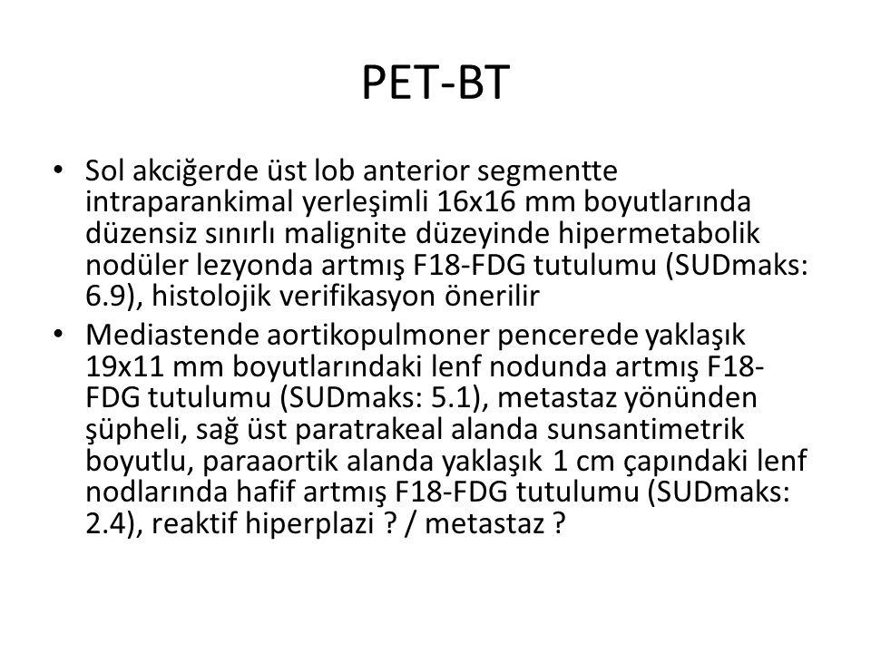 PET-BT