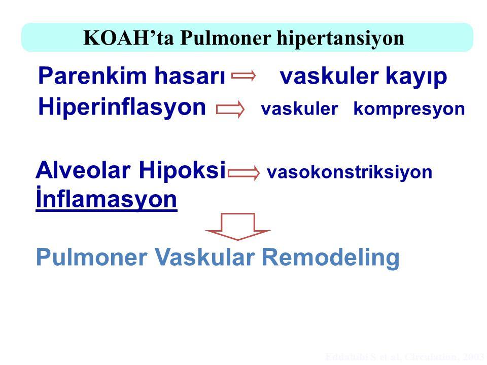KOAH'ta Pulmoner hipertansiyon