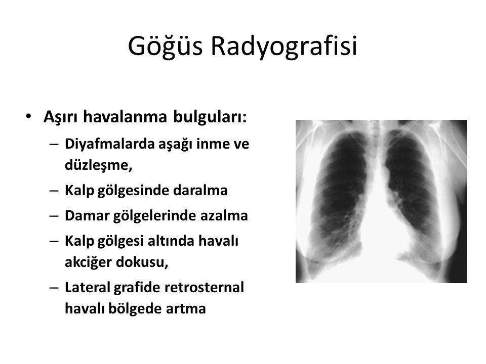 Göğüs Radyografisi Aşırı havalanma bulguları: