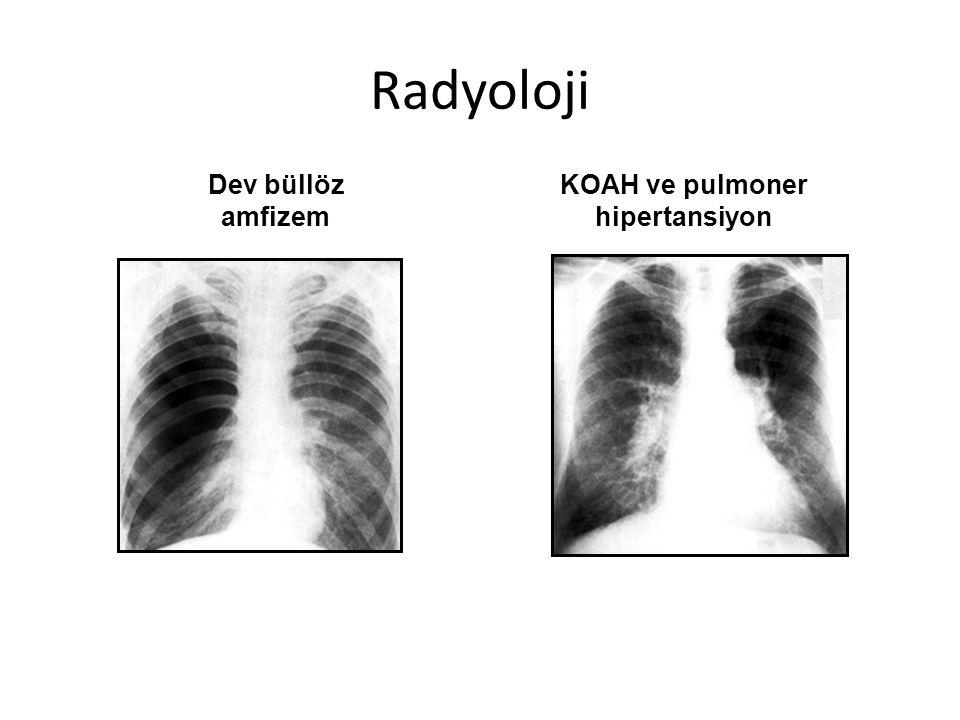 KOAH ve pulmoner hipertansiyon