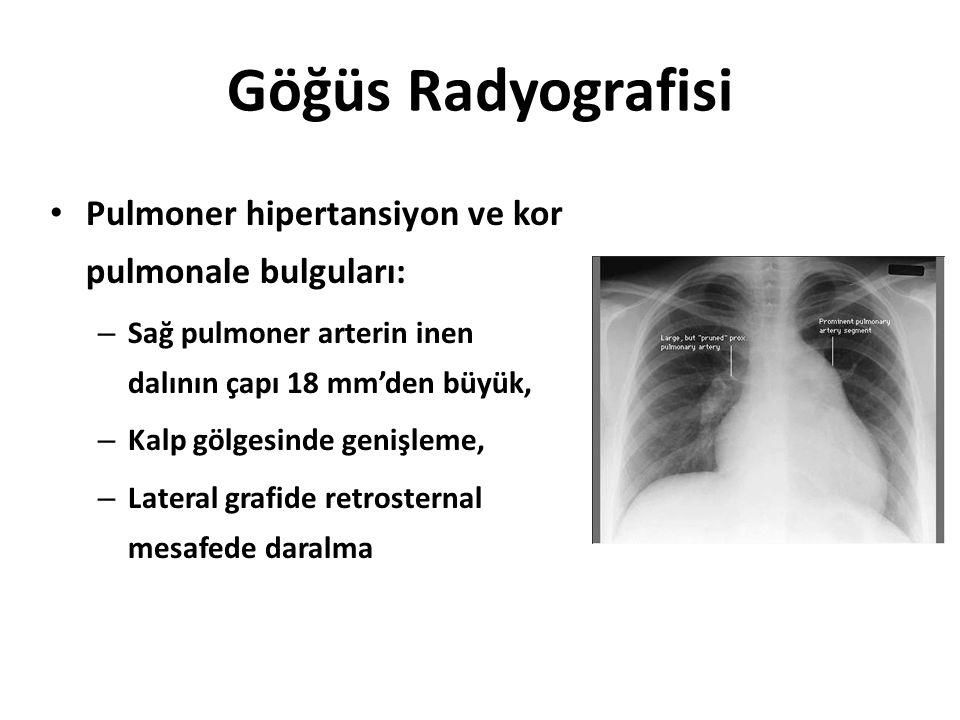 Göğüs Radyografisi Pulmoner hipertansiyon ve kor pulmonale bulguları: