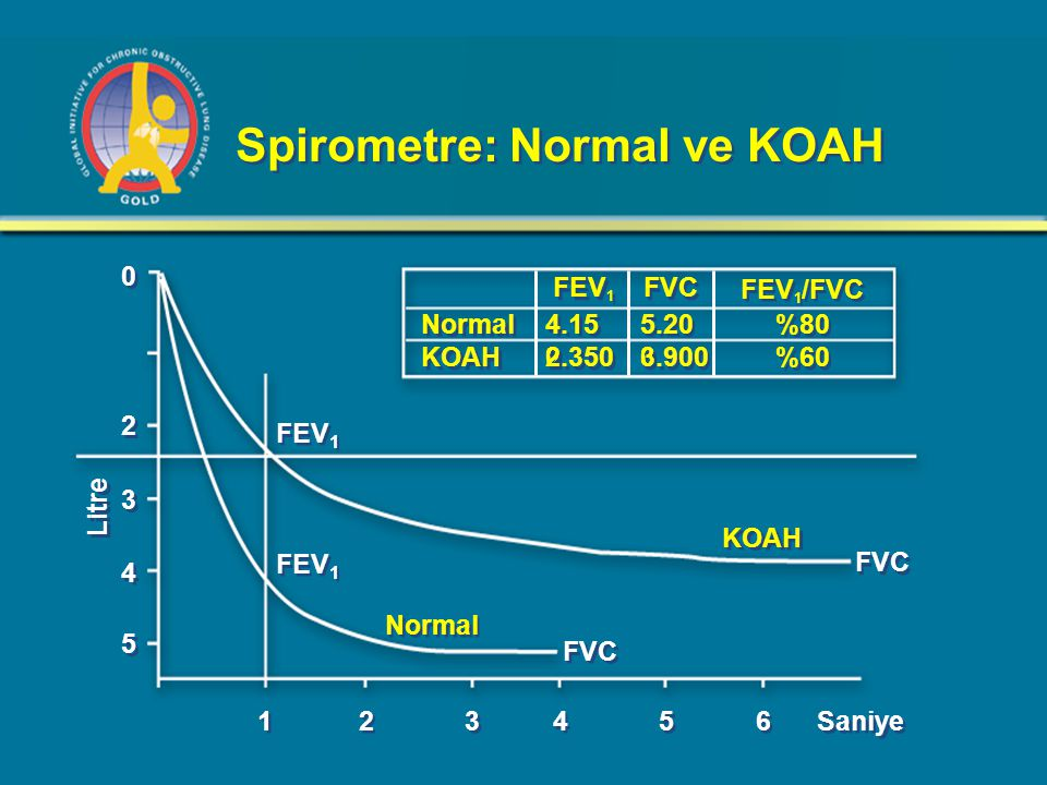 Spirometre: Normal ve KOAH