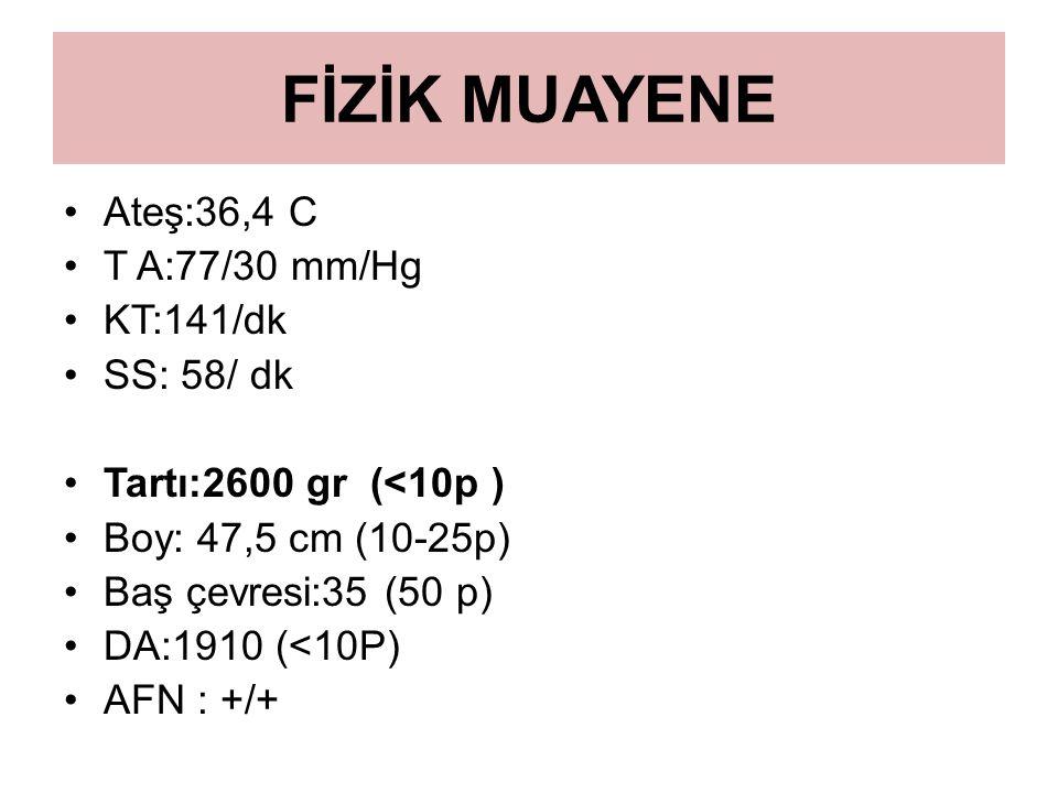 FİZİK MUAYENE Ateş:36,4 C T A:77/30 mm/Hg KT:141/dk SS: 58/ dk