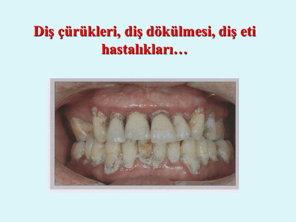 Diş çürükleri, diş dökülmesi, diş eti hastalıkları…