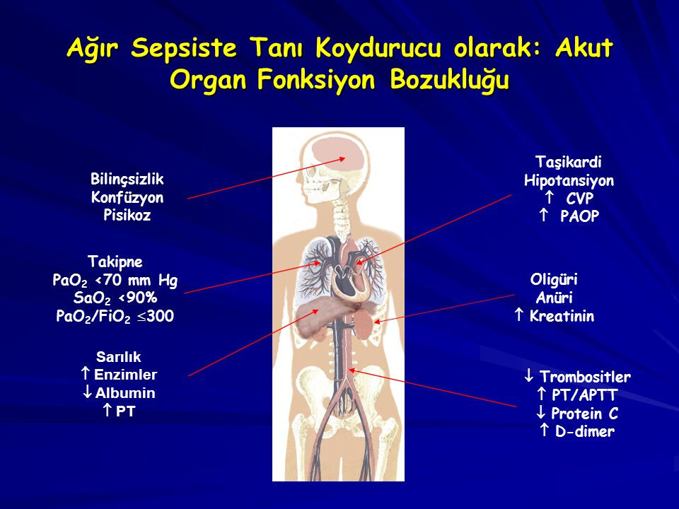 Ağır Sepsiste Tanı Koydurucu olarak: Akut Organ Fonksiyon Bozukluğu