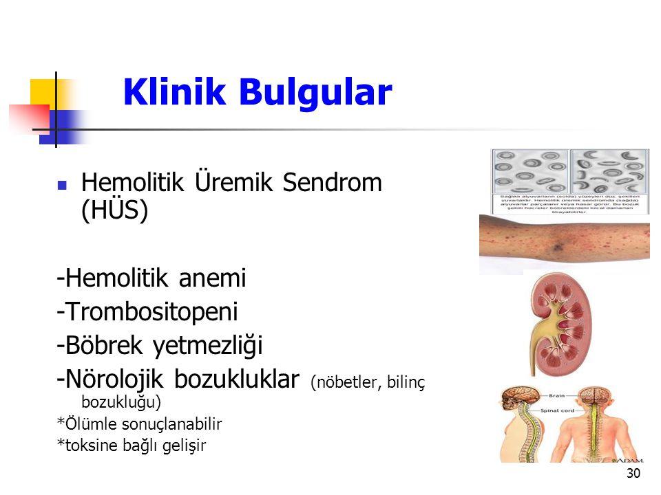 Klinik Bulgular Hemolitik Üremik Sendrom (HÜS) -Hemolitik anemi