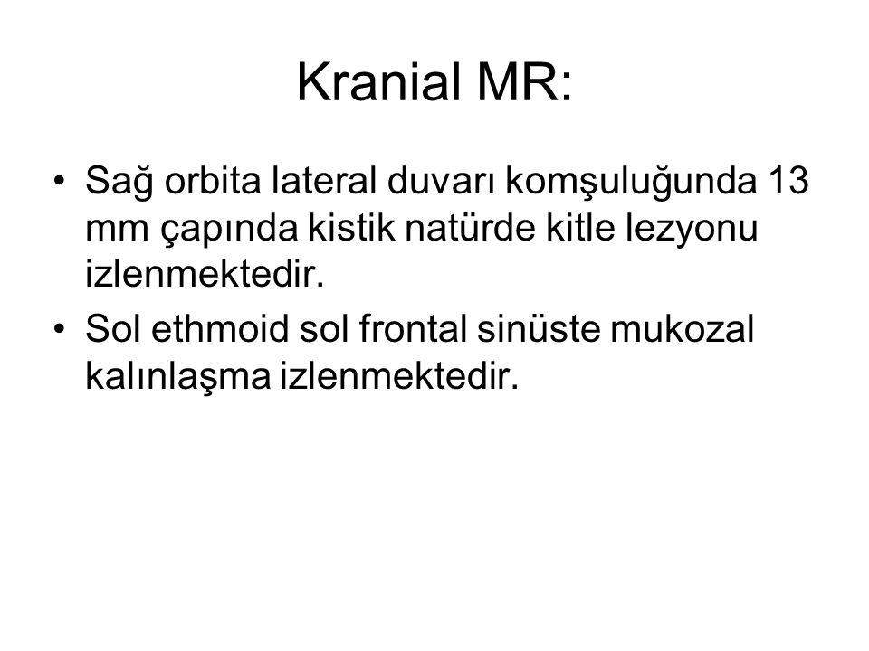 Kranial MR: Sağ orbita lateral duvarı komşuluğunda 13 mm çapında kistik natürde kitle lezyonu izlenmektedir.