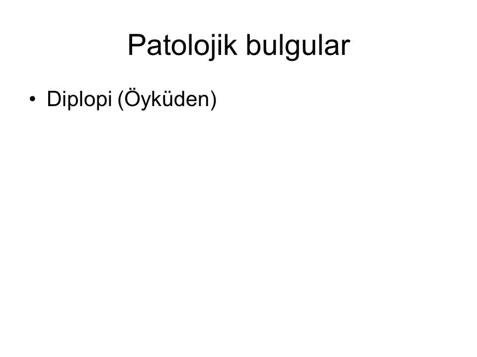 Patolojik bulgular Diplopi (Öyküden)