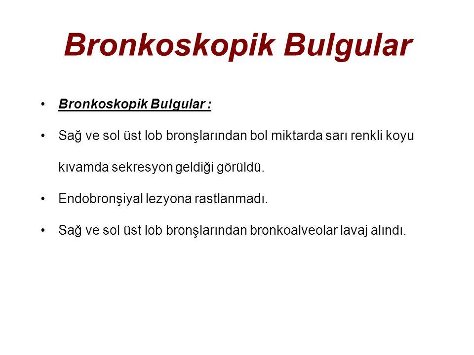 Bronkoskopik Bulgular