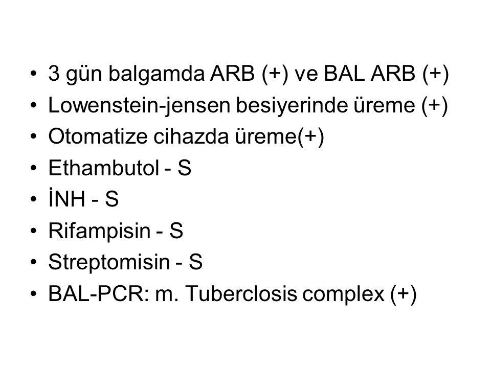 3 gün balgamda ARB (+) ve BAL ARB (+)