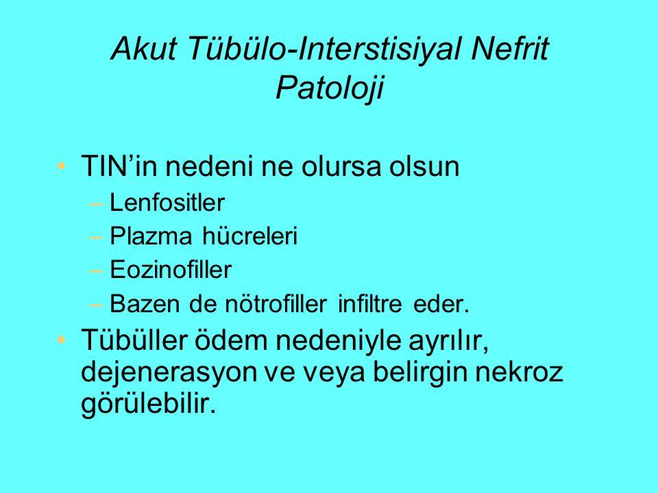 Akut Tübülo-Interstisiyal Nefrit Patoloji