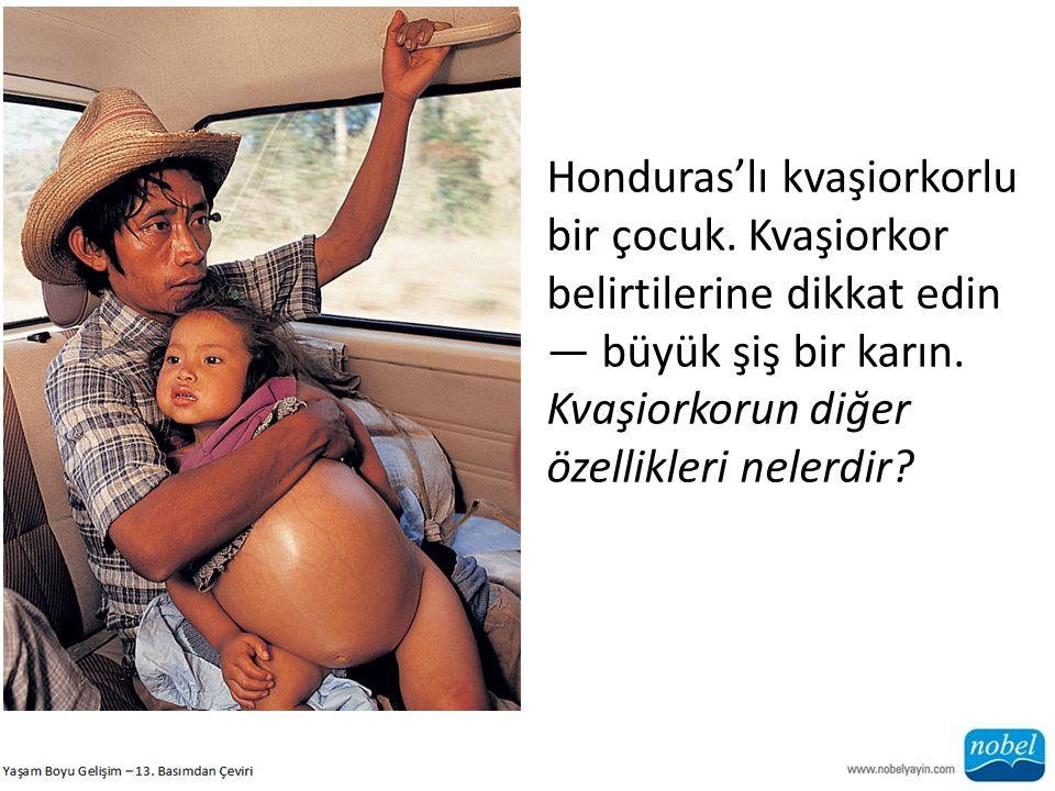 Honduras'lı kvaşiorkorlu bir çocuk