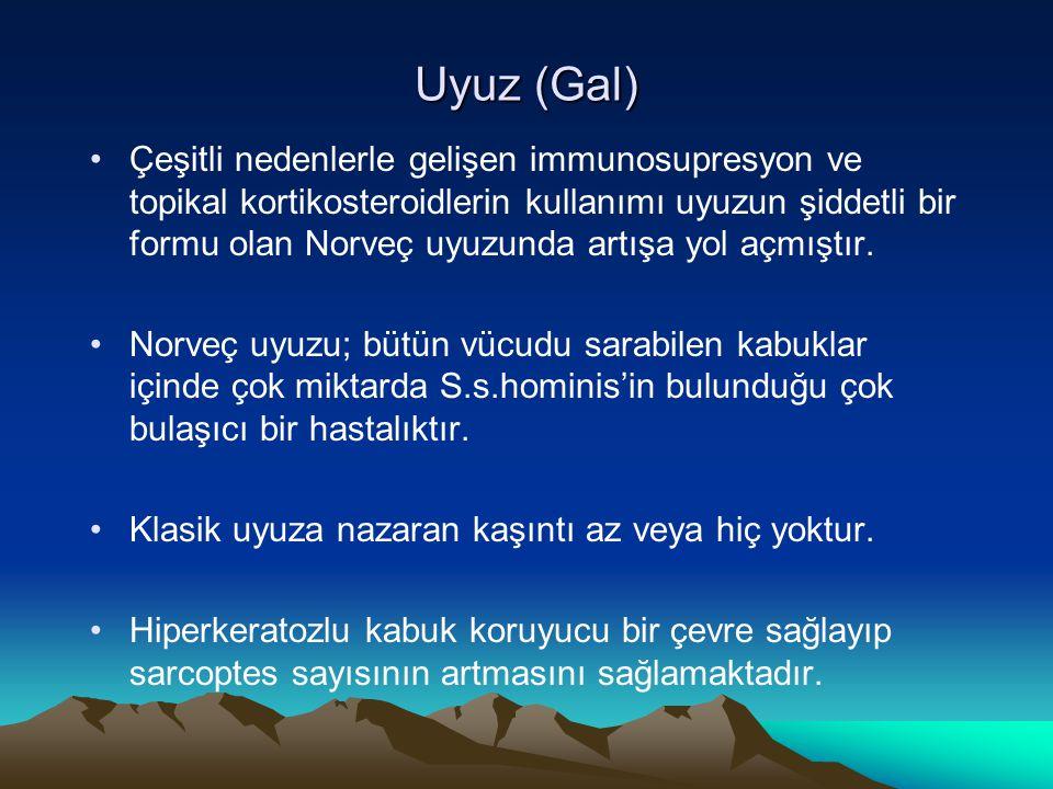 Uyuz (Gal)