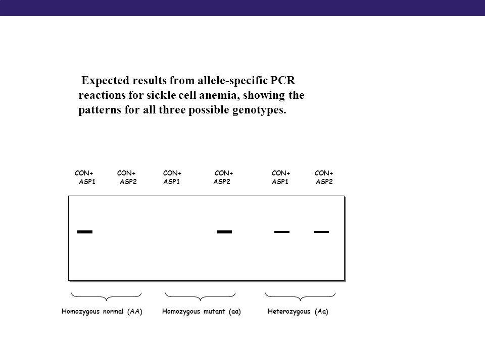 Expected results from allele-specific PCR reactions for sickle cell anemia, showing the patterns for all three possible genotypes.