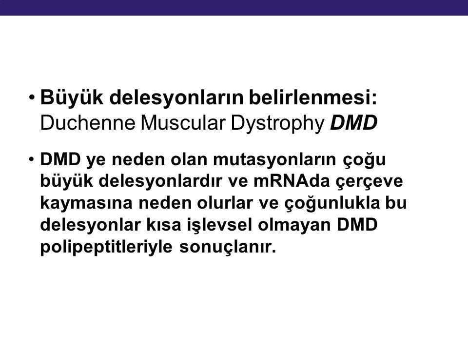 Büyük delesyonların belirlenmesi: Duchenne Muscular Dystrophy DMD
