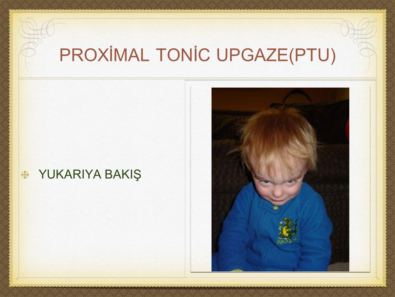 PROXİMAL TONİC UPGAZE(PTU)