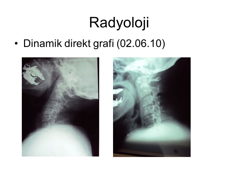 Radyoloji Dinamik direkt grafi (02.06.10)