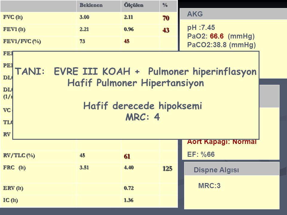 TANI: EVRE III KOAH + Pulmoner hiperinflasyon