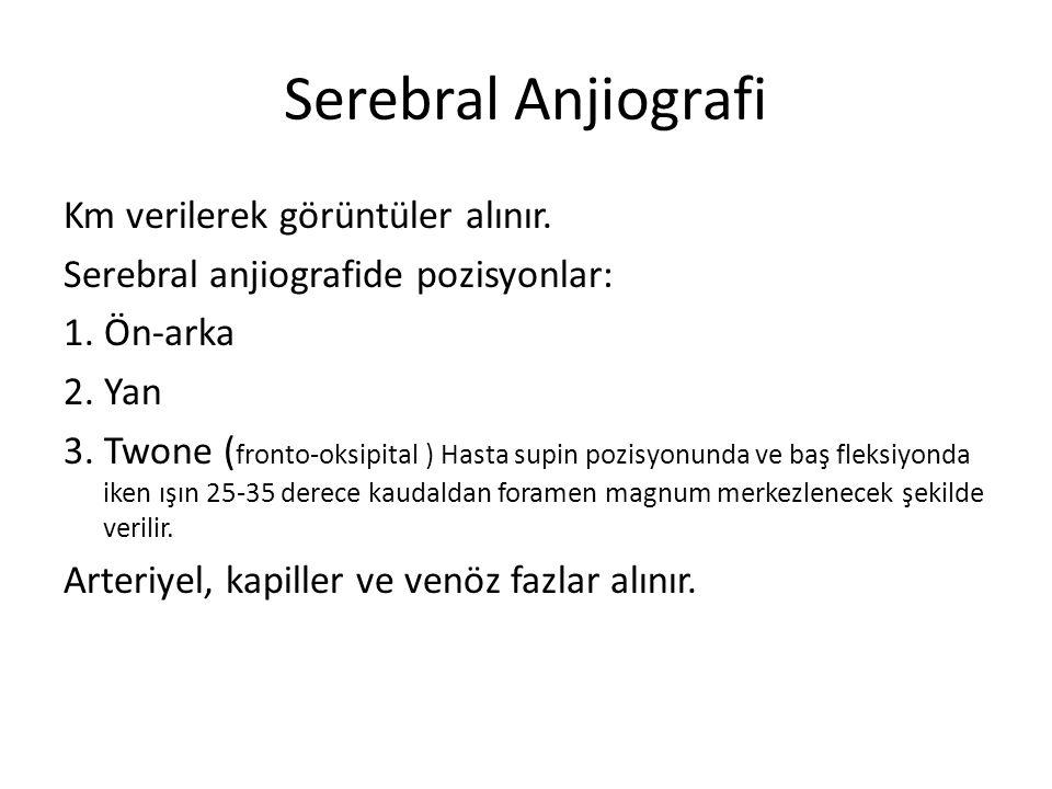 Serebral Anjiografi