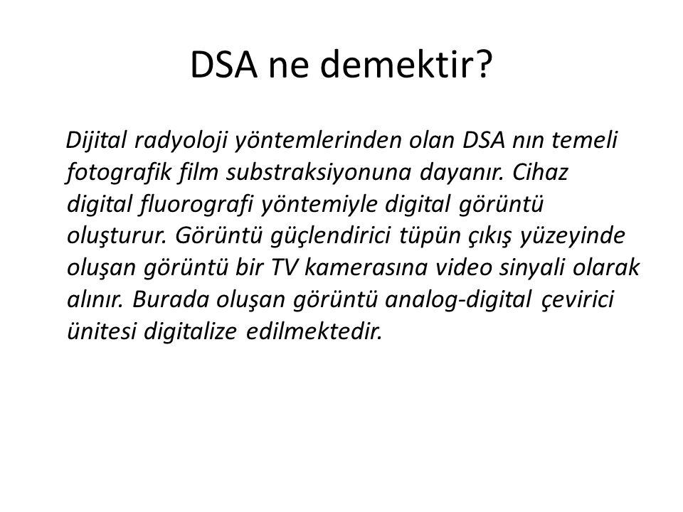 DSA ne demektir