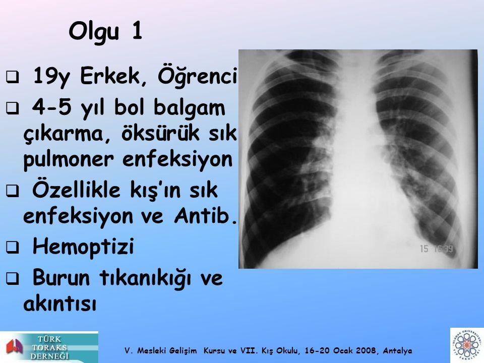 Olgu 1 19y Erkek, Öğrenci. 4-5 yıl bol balgam çıkarma, öksürük sık pulmoner enfeksiyon. Özellikle kış'ın sık enfeksiyon ve Antib.