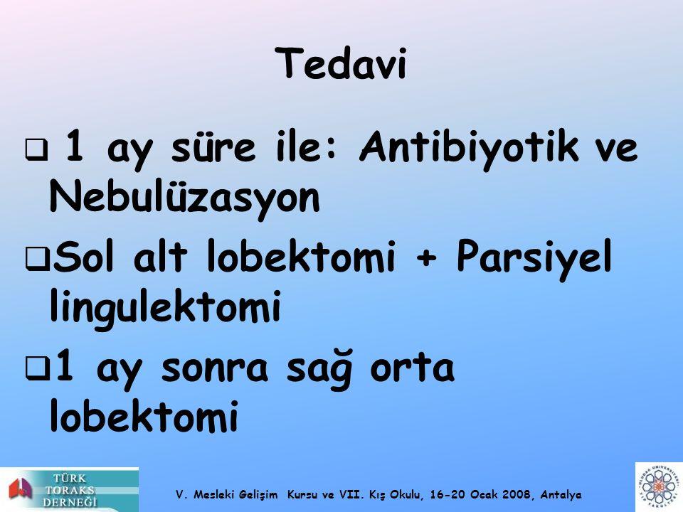 Sol alt lobektomi + Parsiyel lingulektomi