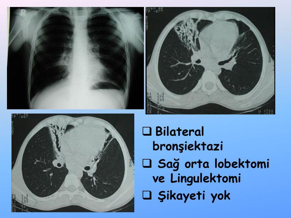 Bilateral bronşiektazi