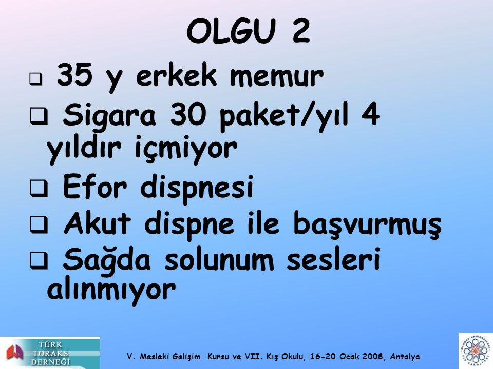 OLGU 2 Sigara 30 paket/yıl 4 yıldır içmiyor Efor dispnesi