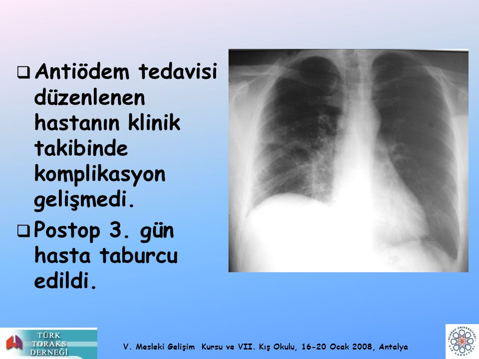 Antiödem tedavisi düzenlenen hastanın klinik takibinde komplikasyon gelişmedi.
