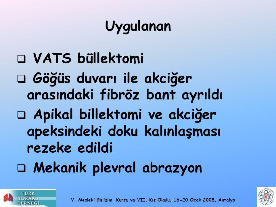 Uygulanan VATS büllektomi. Göğüs duvarı ile akciğer arasındaki fibröz bant ayrıldı.
