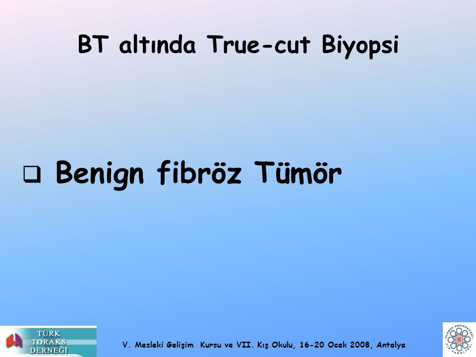 BT altında True-cut Biyopsi