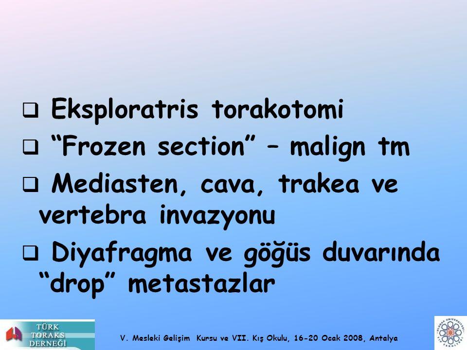 Eksploratris torakotomi