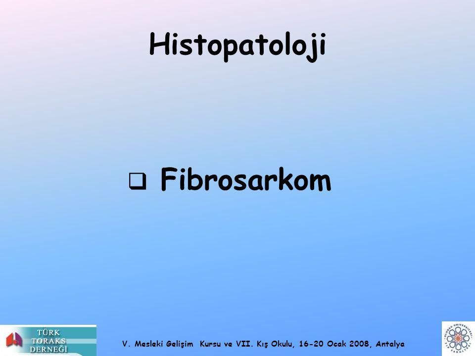 Histopatoloji Fibrosarkom