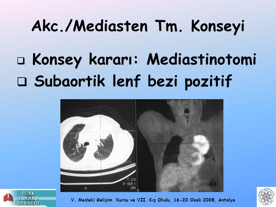 Akc./Mediasten Tm. Konseyi