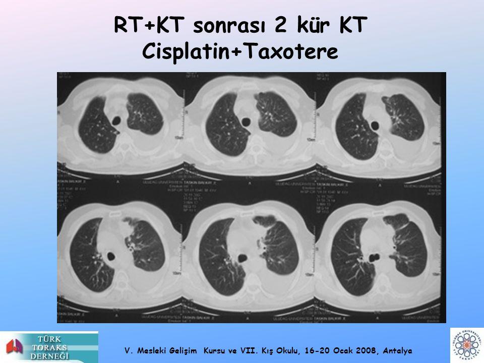 RT+KT sonrası 2 kür KT Cisplatin+Taxotere