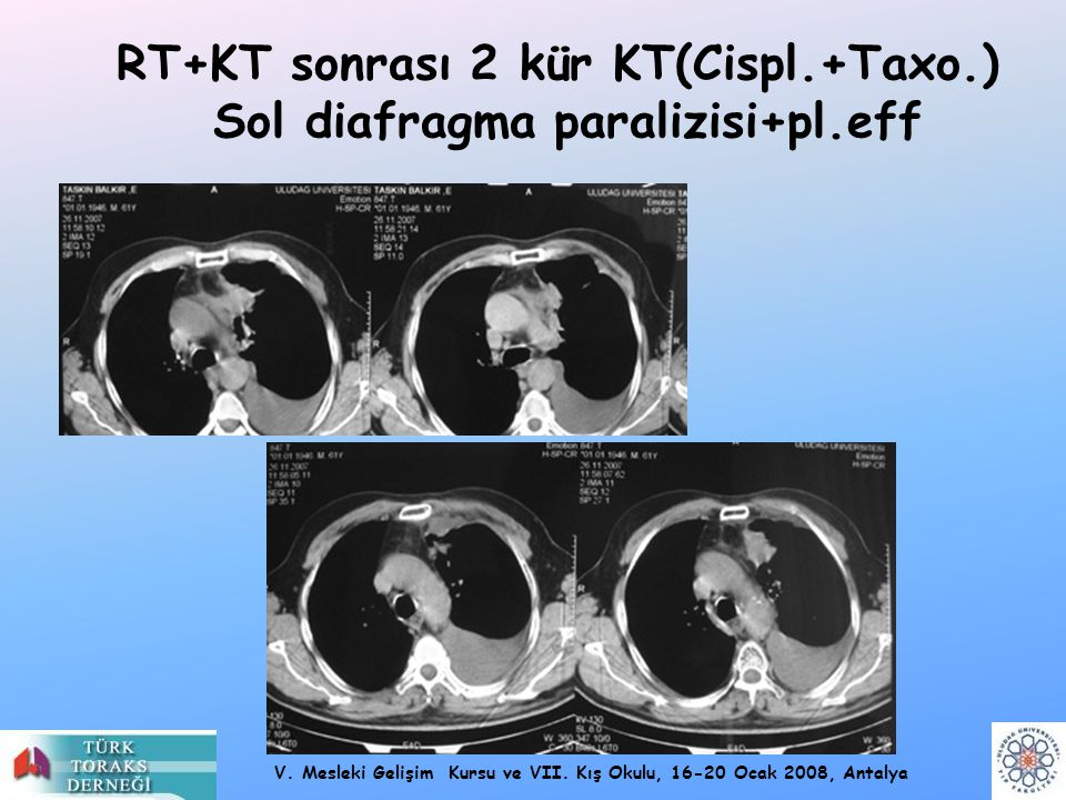 RT+KT sonrası 2 kür KT(Cispl.+Taxo.) Sol diafragma paralizisi+pl.eff