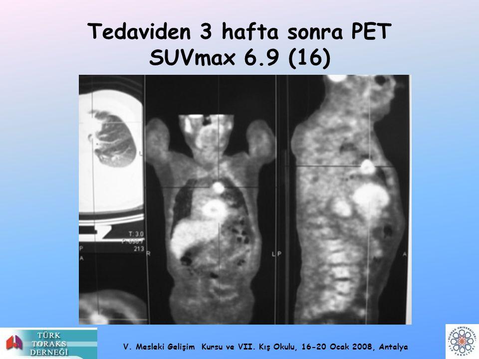 Tedaviden 3 hafta sonra PET SUVmax 6.9 (16)