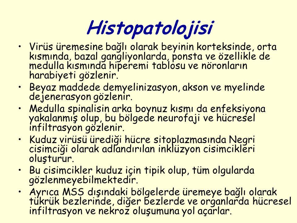 Histopatolojisi