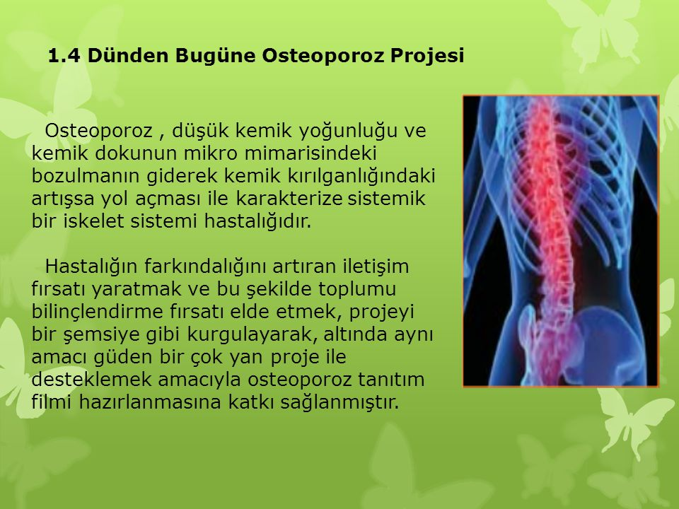 1.4 Dünden Bugüne Osteoporoz Projesi